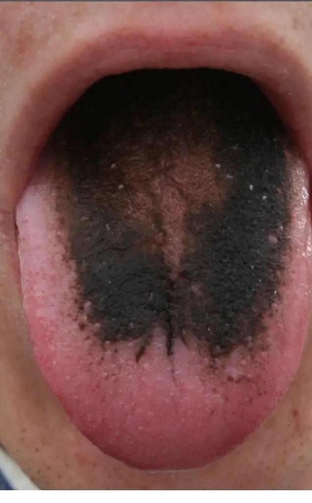 舌にみられる粘膜疾患について | 習志野市の歯科スマイル ...