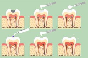 Dental Fillings: Procedure & Costs | smile.com.au