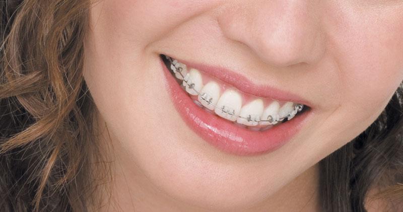 Ceramic Braces For Adults  Ceramic Tooth Coloured Ceramic