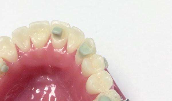mini mold-cuspid bite ramp model