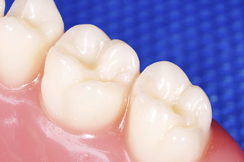 Smile Care Plymouth White Fillings