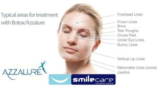 Anti-Wrinkle Injections Treatment - Azzalure Injections