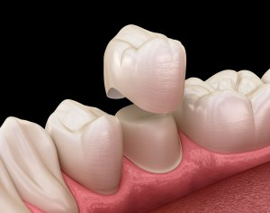 SmileCare Plymouth Dental Crowns