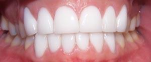 Jodie Dart Teeth After