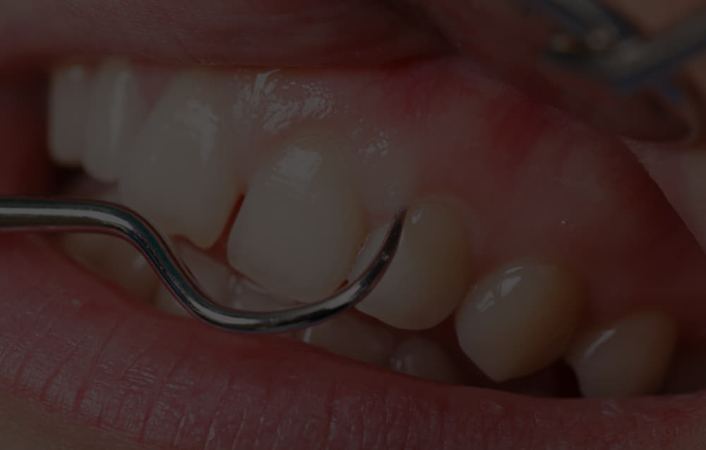 What types of gums are there and their diseases?
