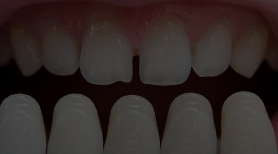 When is each type of dental implant indicated?
