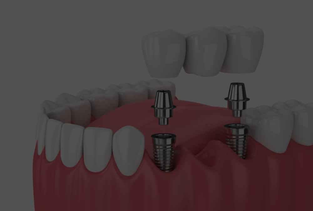 When is it necessary to change a dental bridge?