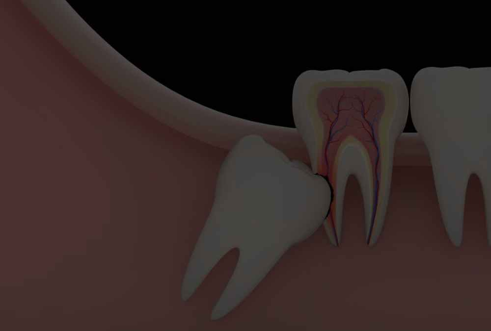 When is prophylactic wisdom tooth extraction necessary?
