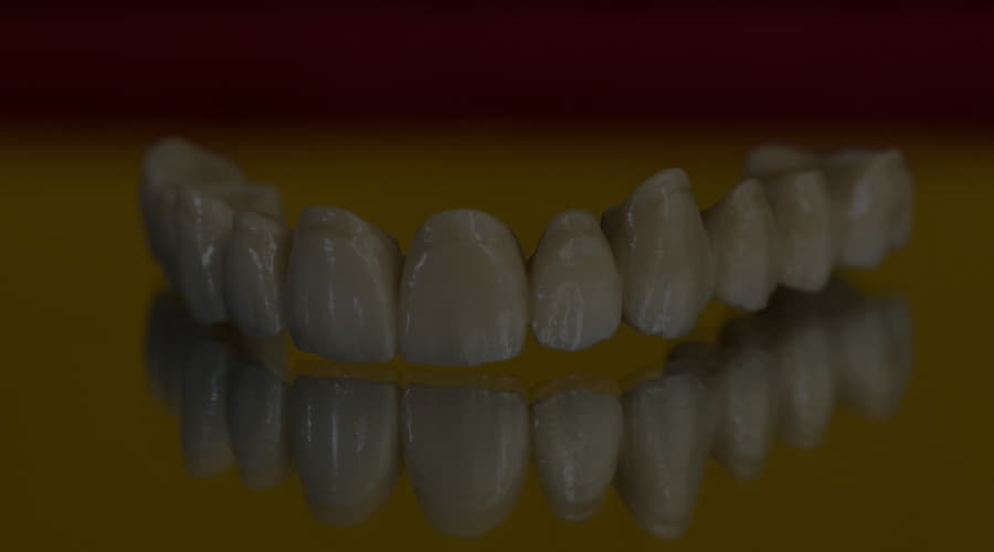 Zirconia dental bridges, what are they and when are they indicated?