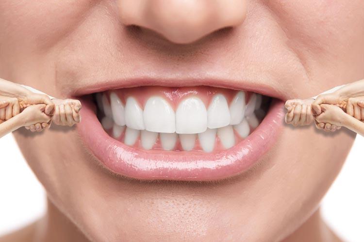 Three Truths about Invisalign Braces - Smilekraft Dentistry