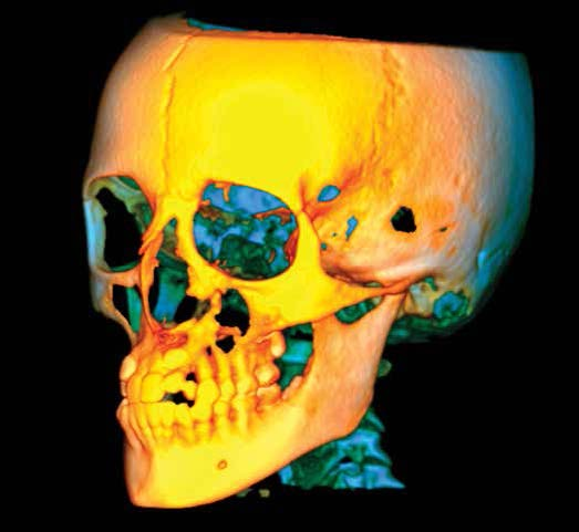 3D X-ray skull cbct orthodontic