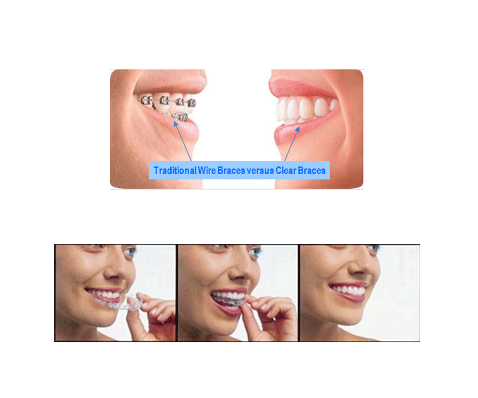 Contemporary Broken Jaw Wired Shut Surgery Ideas - Schematic Diagram ...