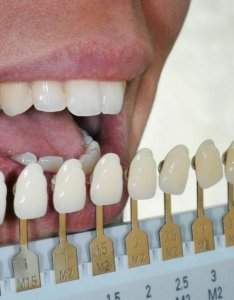 How do  know what shade my teeth are dentist fresno ca also rh smilesbydrdonan