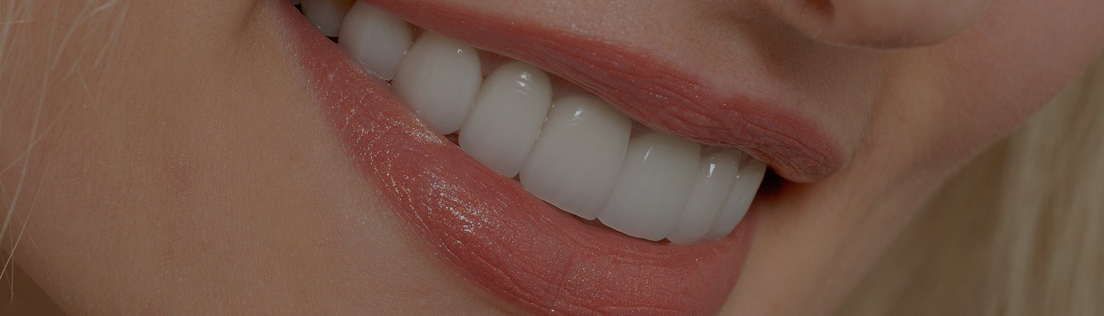 Chipped Tooth or Cracked Tooth | I Cracked My Tooth- Now What?