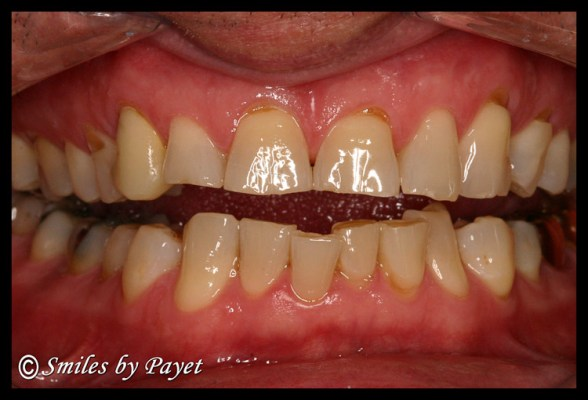 Teeth damaged by grinding & clenching