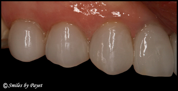 A Porcelain Dental Veneer made by Charlotte dentist Dr. Payet with the CEREC CAD/CAM system.
