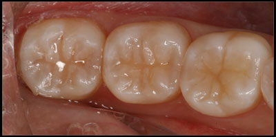 Teeth after very small tooth-colored fillings were done, possible because of the dental microscope.