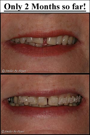 Closing the gap between front teeth with 6-Month Braces