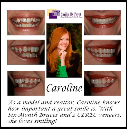 Dr. Payet, a dentist in Charlotte NC, used Six (6) Month Braces and Porcelain CEREC veneers for this smile makeover.
