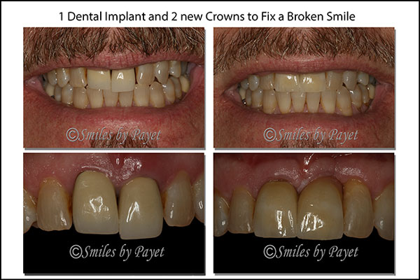 A dental implant and dental crowns for cosmetic dentistry by Charlotte dentist Dr. Payet