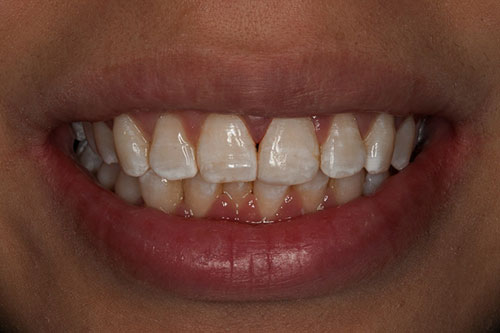After photo of a smile with composite bonding to fix a broken tooth