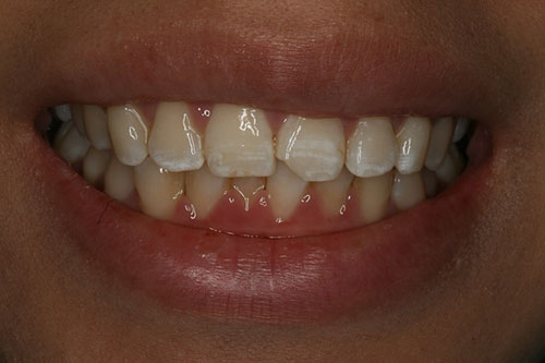 A chipped front tooth can be fixed conservatively and affordably with bonding.