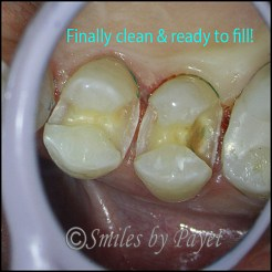 After cavities are cleaned out, there can be big holes to fill.