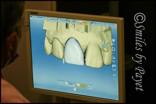 CEREC same-day porcelain crowns with digital imaging