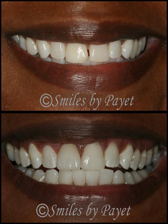 Cosmetic dentistry in Charlotte NC by Dr. Payet; porcelain crown and bonding