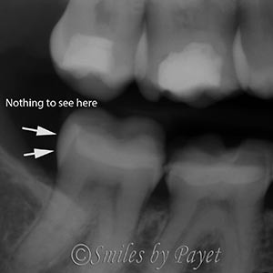 tooth cracks don't show up on x-rays Charlotte dentist