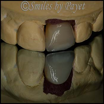 Cosmetic dentist dental implants Charlotte