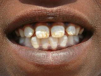 what does fluorosis look like, and is it bad