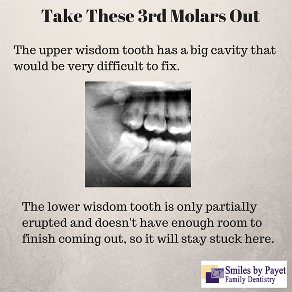 Reasons wisdom teeth need to be extracted