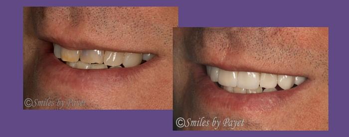 before and after porcelain veneers left side smile
