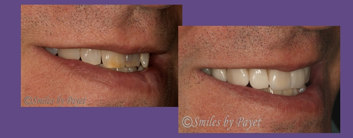 before and after porcelain veneers right side smile