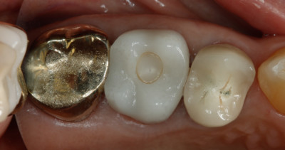 Top view of 17yr old CEREC crown by Charlotte dentist Dr. Payet