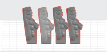 3D models by Charlotte dentist for affordable adult braces clear aligners