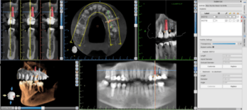 Virtual treatment planning of dental implants and crowns by Charlotte dentist Dr. Charles Payet