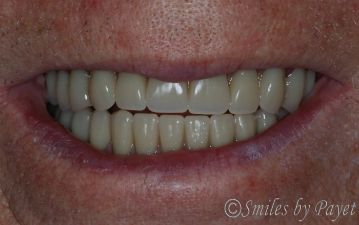 Charlotte dentist beautiful dentures, dental implant dentures