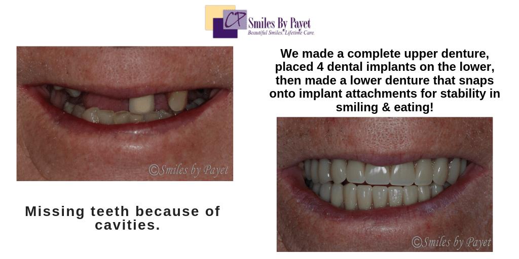 Dental implant overdentures by Charlotte dentist Dr. Payet