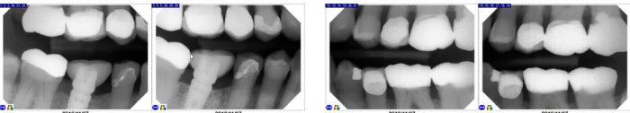 4 bitewing x-rays