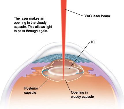 Yag Laser - Posterior Capsulotomy Procedure - Snead Eye Group