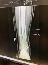 Image of Jones Right leg fracture https://www.gofundme.com/387sz6o