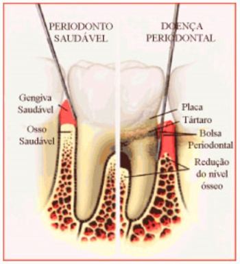doenca periodontal e diabetes
