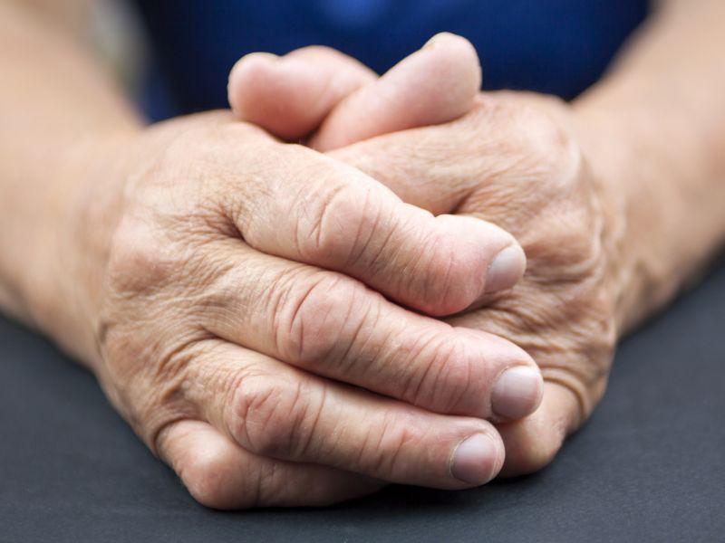 arthritic hands Nonsteroidal Anti-Inflammatory
