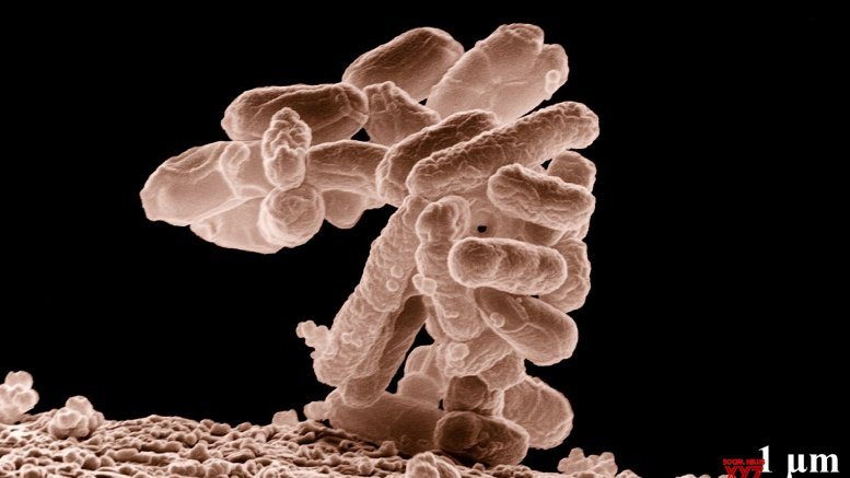 Indian firm develops test to detect drug-resistant TB mutation