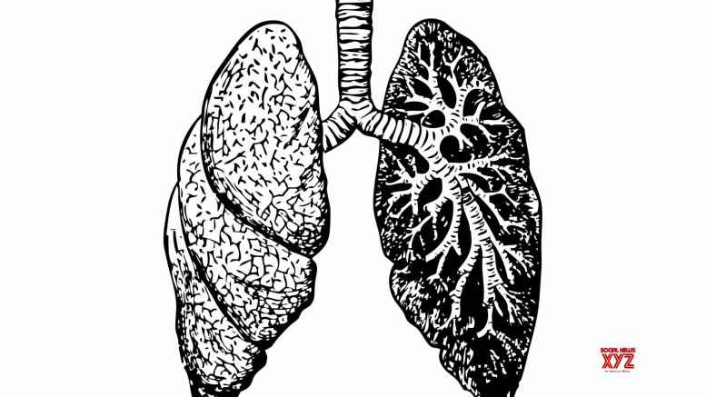 Lungs of dead COVID-19 patients show distinctive features: Study