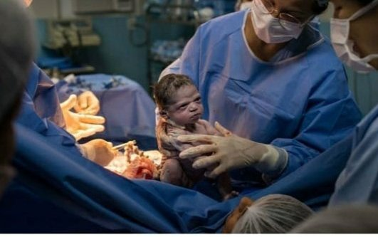 Newborn looks at doctor furiously, Netizens amused