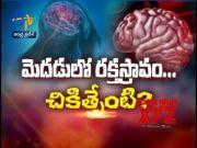 About Hemorrhagic bleeding | Sukhibhava | 13th October 2021 | ETV Andhra Pradesh  (Video)