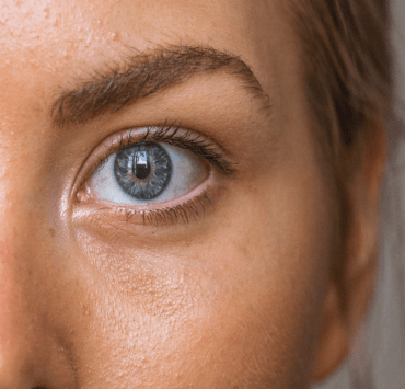 Are you looking for simple yet effective natural treatments for dark circles? Read on to find out how to remove dark circles using natural products!